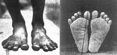 Barefoot Feet in 1905