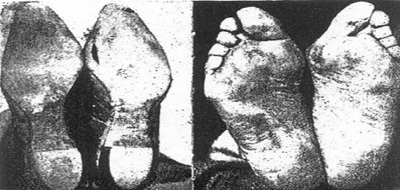 Shoed Feet in 1905