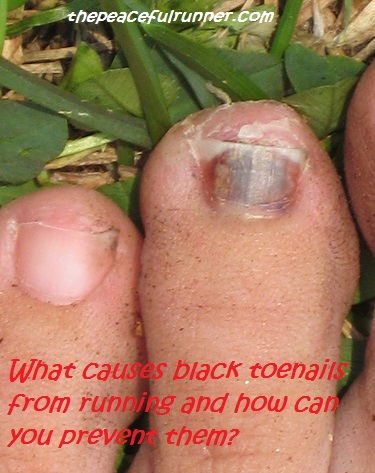 Black Toenails from Running