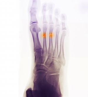 Top of Foot Pain